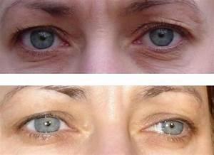 Самые эффективные маски вокруг глаз в домашних условиях от морщин