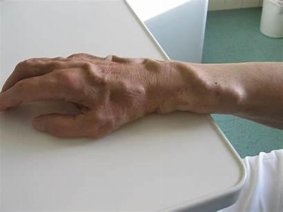 Hand Fistula Vein Veins Cephalic Radiocephalic Filling