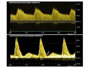 Normal Uterine Artery Blood Flow Velocity Waveforms At 23