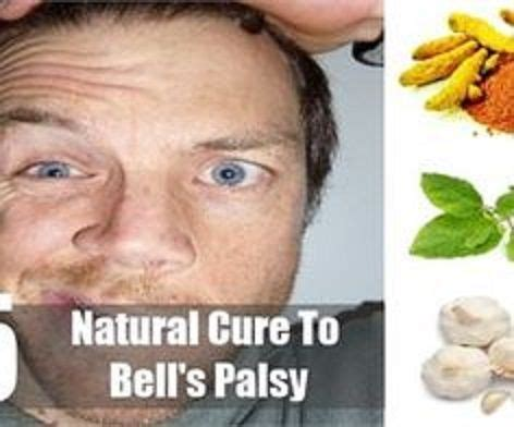 18 Best Bells Palsy Images On Pinterest  Bell's Palsy, Le. 25 January Signs. Cafeteria Signs Of Stroke. Dementia Patient Signs. Coffee Signs Of Stroke. Surveillance Signs. Prosperity Signs. Intravenous Tissue Signs. Wikipedia Signs Of Stroke