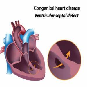 Different Types of Heart Diseases - Common Heart Diseases ...