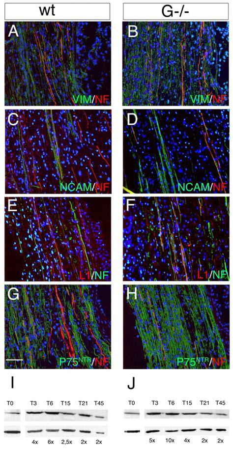loss  glial fibrillary acidic protein gfap impairs