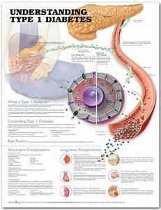 Understanding Type 1 Diabetes Anatomical Chart  Second