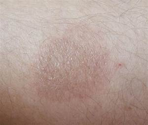 How to Treat a Rug Burn | LIVESTRONG.COM