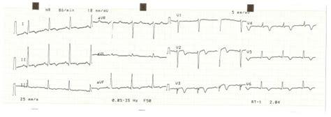 Ecg changes in acute pericarditis, myocarditis, perimyocarditis. ECG 3. ECG of the 10th day, consistent with non-Q-wave myocardial...   Download Scientific Diagram