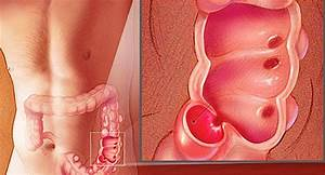 Causes  Symptoms  Surgery  And Other Treatments Of