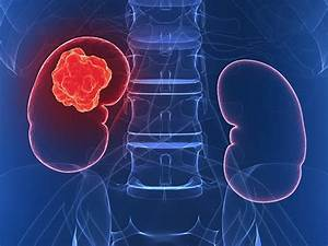 Watch and Wait for Kidney Cancer Helps Some to Avoid Toxicity