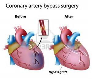 What to Expect in a Coronary Bypass Surgery? - Heart Treatment Heart Bypass Surgery