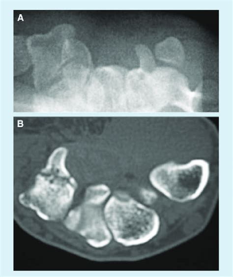 hamate carpal tunnel fracture hook radiograph views clinical unremarkable diagram publication