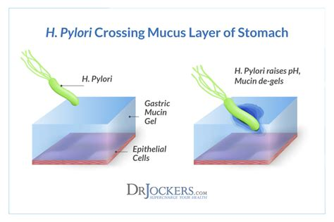bactérie helicobacter pylori symptomes the damaging effects of h pylori infections drjockers