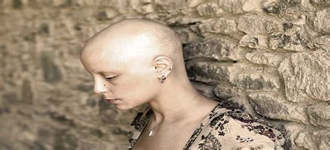Alopecia Totalis - Causes, Treatments, and Support Community