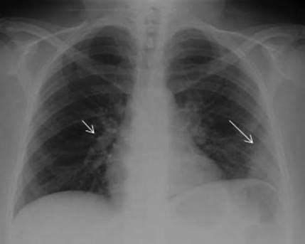 patients chest  ray  admission showing  hampton