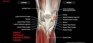 Medial Collateral Ligament  Mcl  Injuries  U2013 Thermoskin