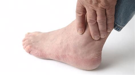 Ankle Gout Swelling Foot