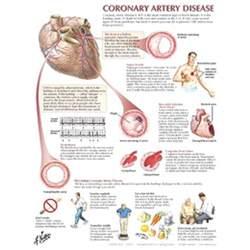Coronary Artery Disease Chart