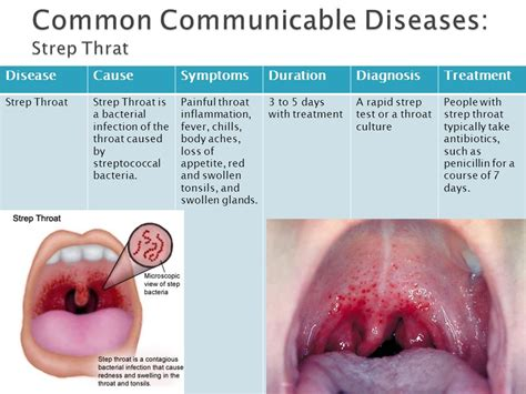 Communicable & Chronic Diseases  Ppt Download. American General Life Insurance Reviews. Alabama Nursing Schools Lap Band Surgery Tulsa. Air Conditioner Repair Cost Hearing Aid Usa. Mount Washington Savings Bank. Myrtle Beach Attorneys Us Agencies New Iberia. Degree Of Information Technology. Home To School Connection Audi A3 Autotrader. Industrial Organizational Psychology Online
