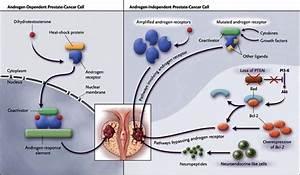 Medical Issue  Prostate Cancer  Management Prostate Cancer