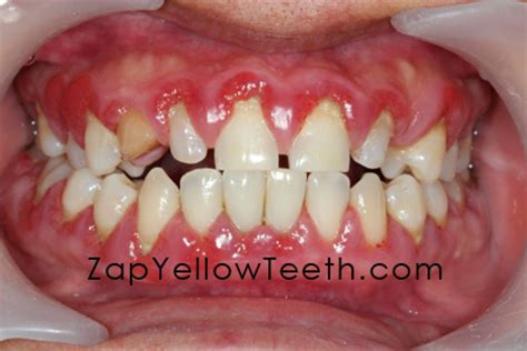 what color are your gums supposed to be unhealthy gums images search