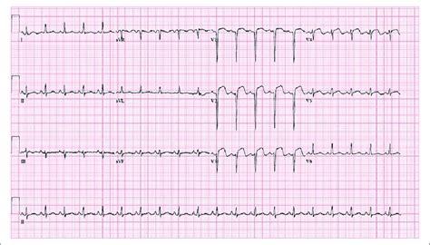 Electrocardiography Showed A Sinus Tachycardia, V1-v3 St