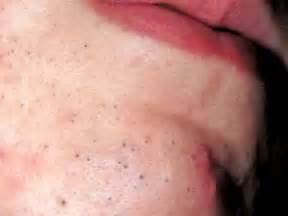 Difference Between Pimples and Blackheads