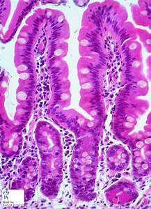 Small Intestine - Humpath Com