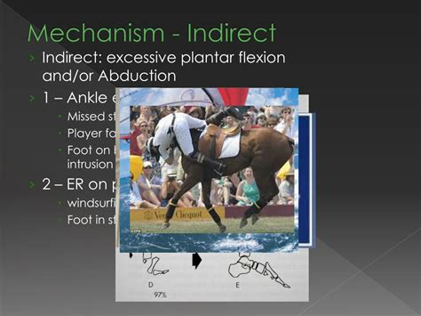Lisfranc joint injuries are the most common injuries of the midfoot. PPT - LISFRANC INJURIES PowerPoint Presentation, free download - ID:4701679