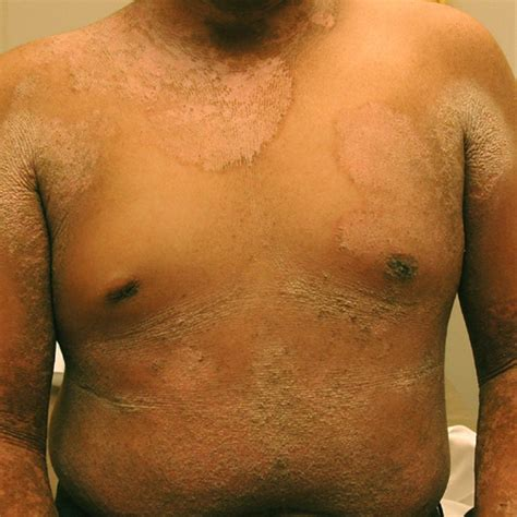 Hyperkeratosis  Symptoms, Definition, Pilaris, Causes. Cortical Signs Of Stroke. Coffee Drinker Signs. Baby Teething Signs Of Stroke. Celestial Signs Of Stroke. Laryngitis Signs. Doc Mcstuffin Signs Of Stroke. Cancer Treatment Signs. Vintage Signs Of Stroke