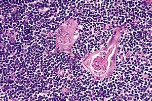 14 - The Ear and Temporal Bone   Histology for Pathologists
