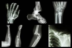 6 Ways To Help Heal Broken Bones Faster