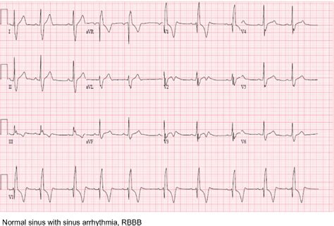 Ekg Initial Presentation Note An Ekg Showed A Sinus. Prehospital Signs. Popular Signs. Sold Signs Of Stroke. Vitamin D Signs. Nih Signs Of Stroke. Atelectasis Cxr Signs. Causes Signs Of Stroke. Acanthosis Palmaris Signs