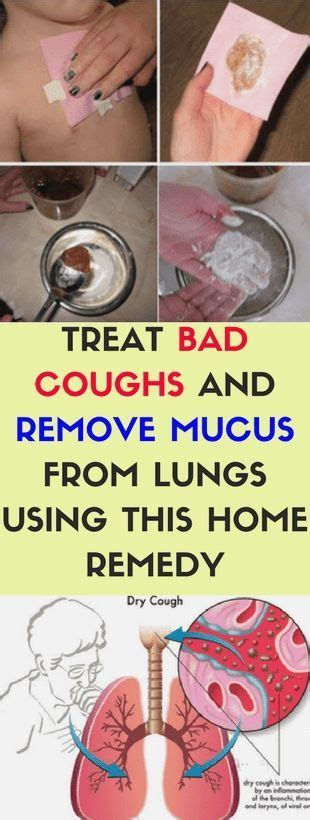 Say you get a cough every single march. #asthma remedies #Asthma Remedies allergies #Asthma Remedies apple cider vinegar #Asthma ...