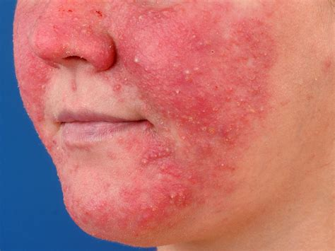 Rosacea Images What Is Rosacea Pictures Photos