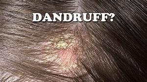 Dandruff - How To Get Rid Of Dandruff