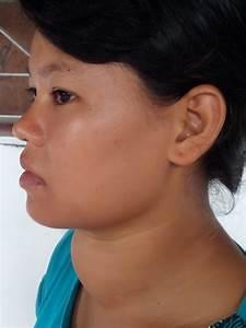 Nan Aye  Thyroid Dysfunction   U00ab Bcmf