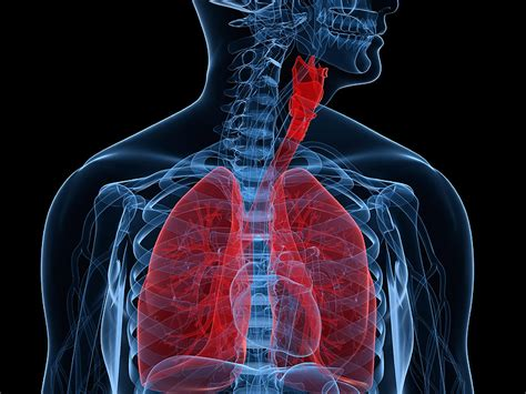 risk tool  opioid induced respiratory depression