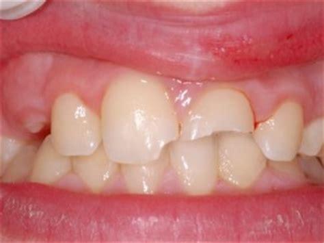 les bons r 233 flexes qui sauvent leurs dents