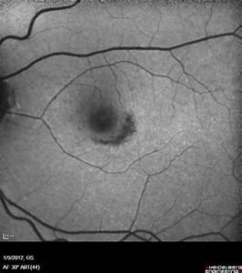 Plaquenil Toxicity - Mild - Partial Bull's Eye Maculopathy ...
