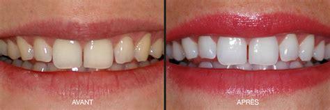 blanchiment dentaire strasbourg professionnel r d dentistes