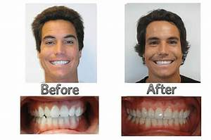 Before After | Bhatia Orthodontics Wailuku, HI