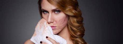 make up akne unreine haut quot ich habe meine akne und meine unsicherheit unter make up versteckt quot brigitte de
