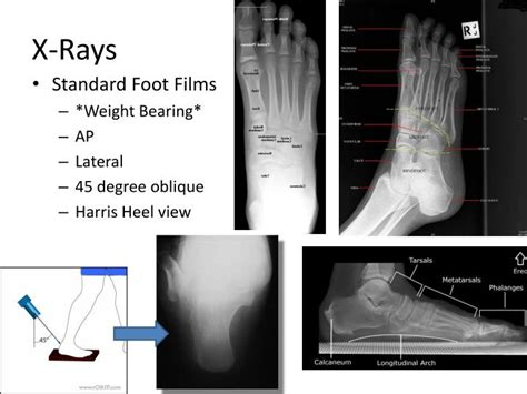 coalition rays tarsal bearing weight foot ap oblique lateral heel harris degree films standard ppt powerpoint presentation slideserve