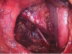 Vulvar Cancer In Situ ESPA  O   NICO  ESPA  O   NICO - NA LUTA CONTRA      Vulvar Cancer