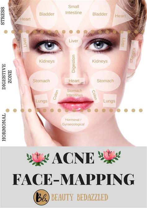 acne face mapping    acne   influenceher collective acne facial