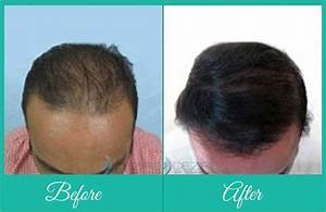 FUE Body Hair Transplant Transplant Hair From Body To