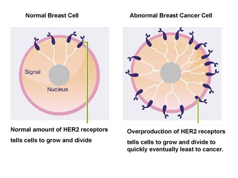 Breast Cancer Images