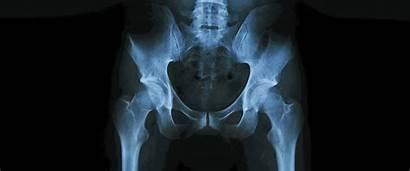Boner Why Boneless Medium