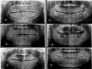 Opgs Showing Different Relations Of Idc With Root Apices Of Mandibular
