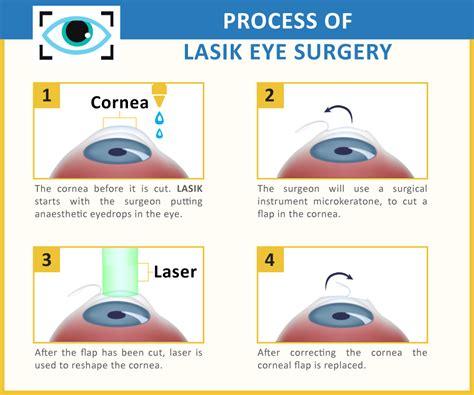 medical tourism   eye treatments  laser