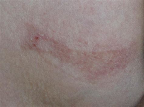 Bed Sores Pics by Bed Or Pressure Sores And Day 37 Post Op 171 My And