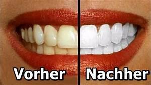 Weiße Zähne Hausmittel : 5 nat rliche hausmittel die deine z hne aufhellen youtube ~ Frokenaadalensverden.com Haus und Dekorationen
